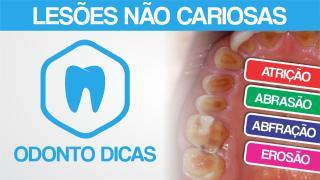 ROTEIRO LESAO NAO CARIOSA.pdf