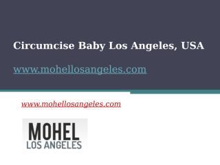 Circumcise Baby Los Angeles, USA - www.mohellosangeles.com.pptx